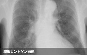 胸部レントゲン画像
